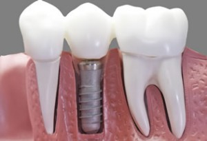 implant-retained-dentures